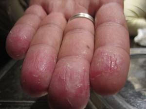 Bőrgyulladás lelki okai
